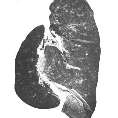 Images from <em>The pathology of the pneumonia in the United States army camps during the winter of 1917-18</em>